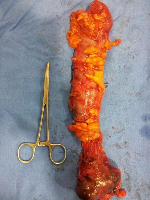 Colectomia Derecha Laparoscópica