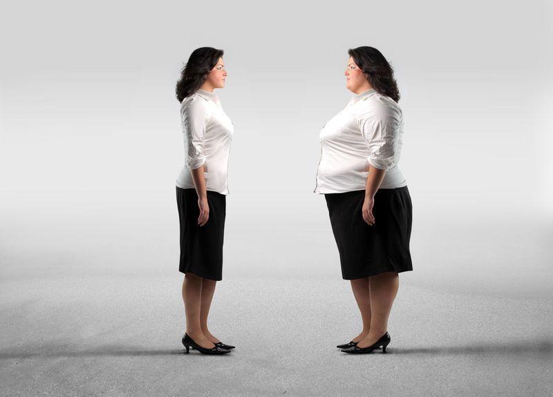 Cirugia de obesidad