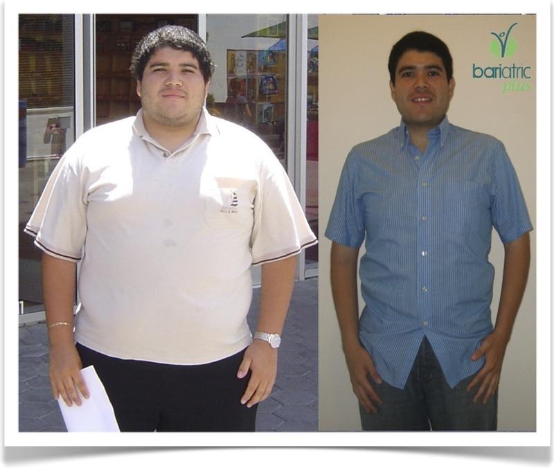 Resultados después de Cirugia de Obesidad