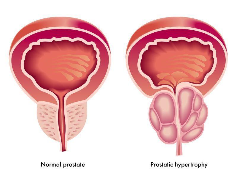 Enfermedades de la prostata