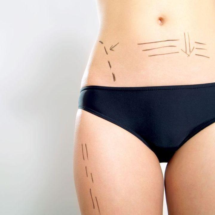 Doc preview cirugia estetica cuerpo
