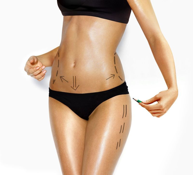 Cirugía de abdomen, mama, glúteos, cadera, etc.