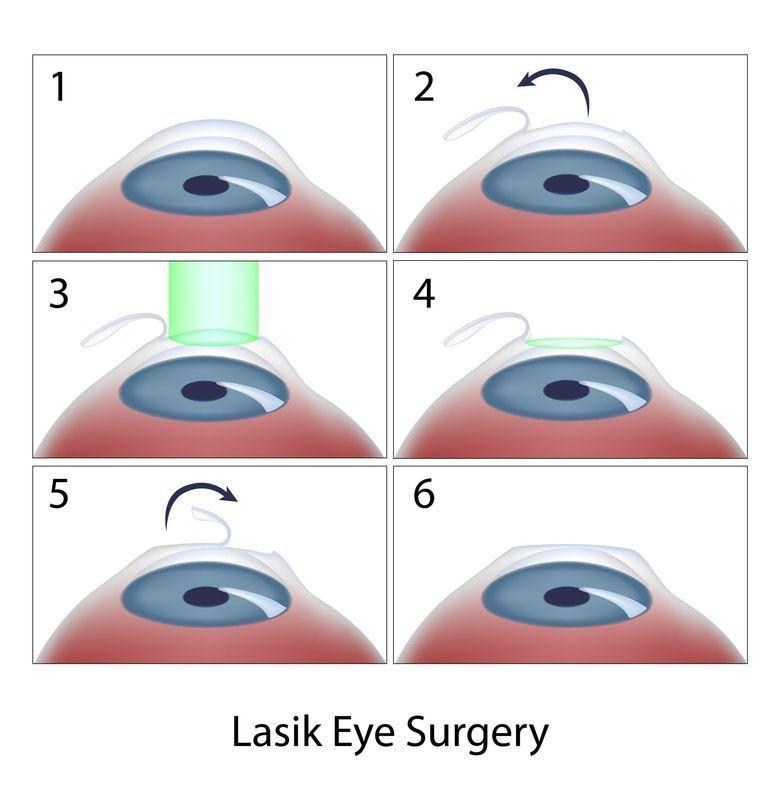 Cirugía lasik (laser)