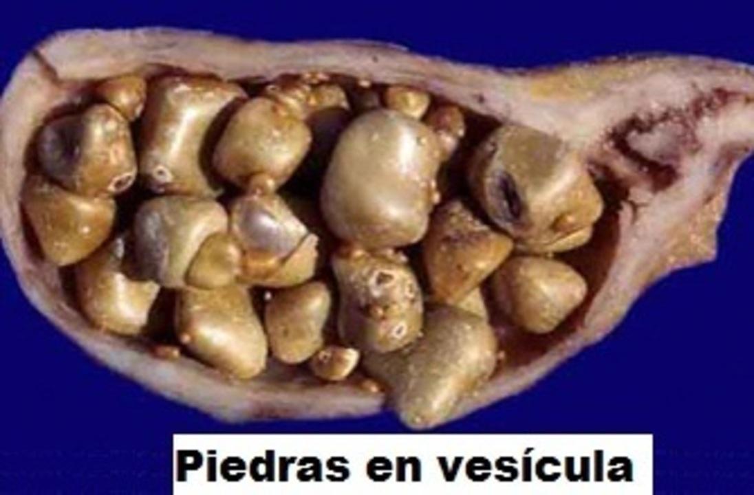 Doc preview coleliatisis piedras en vesicula