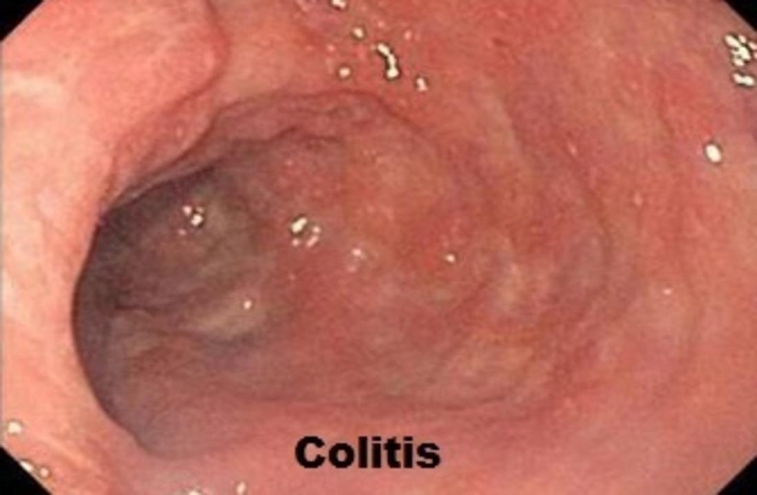 Doc preview colitis