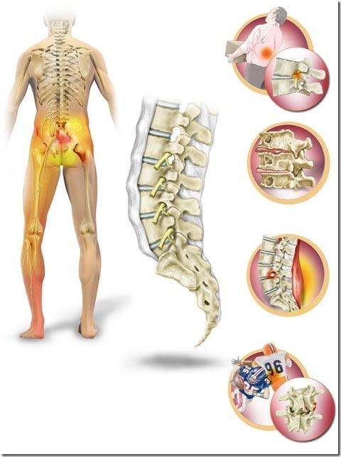lumbalgia y hernia de disco