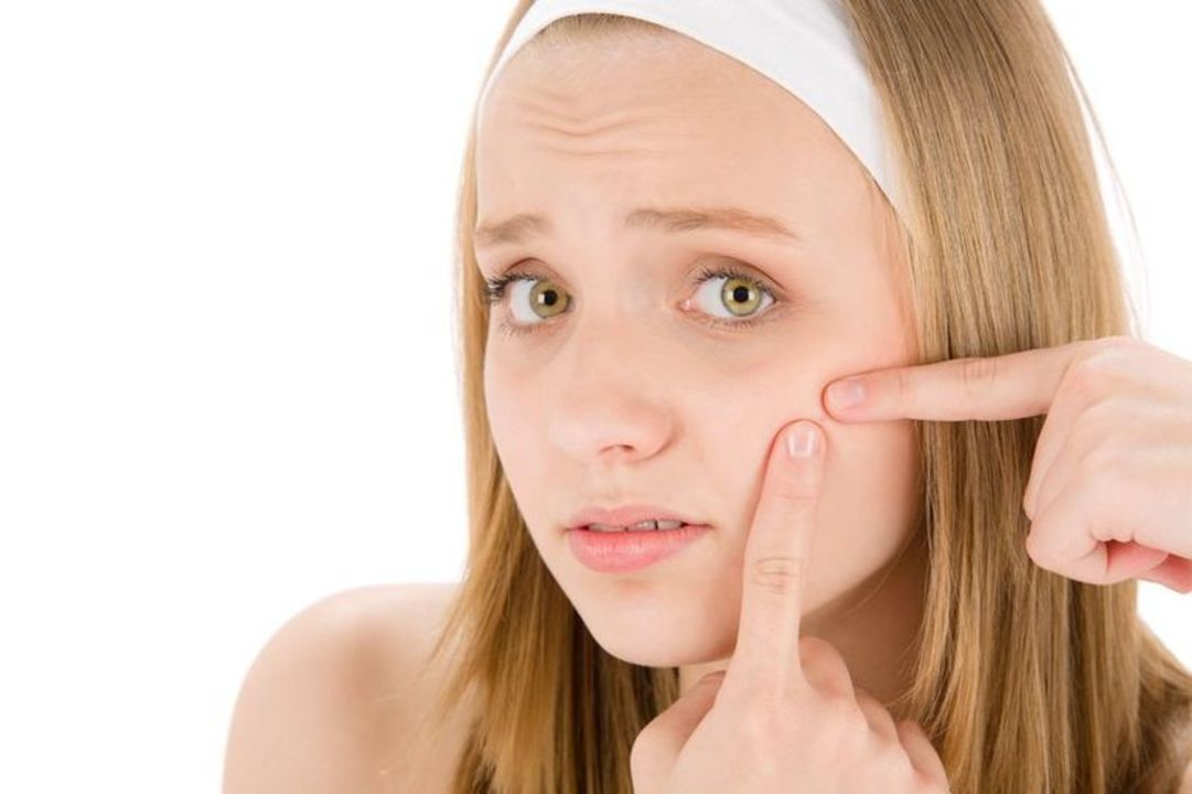Doc preview adolescente con acne
