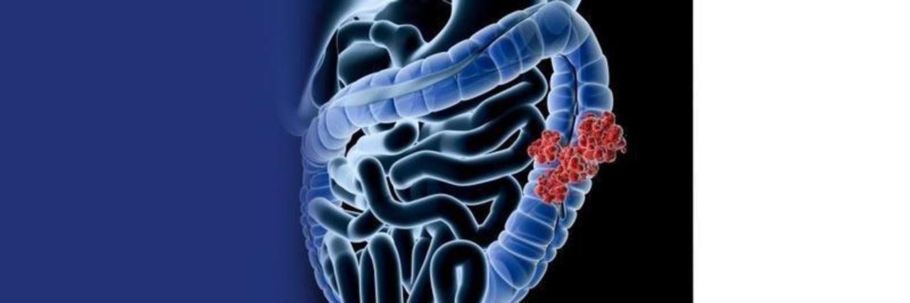 Doc preview c ncer de colon