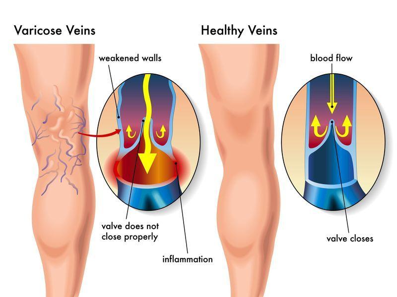 Cirugia vascular, tratamiento de varices.