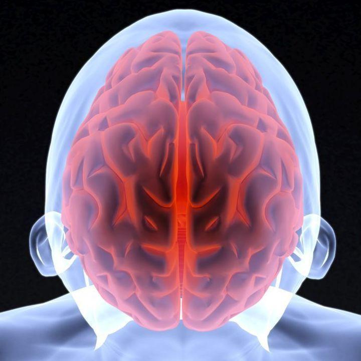 Doc preview cerebro 3