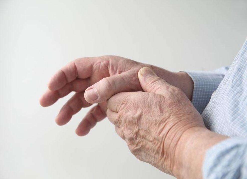 Doc preview manos con artritis