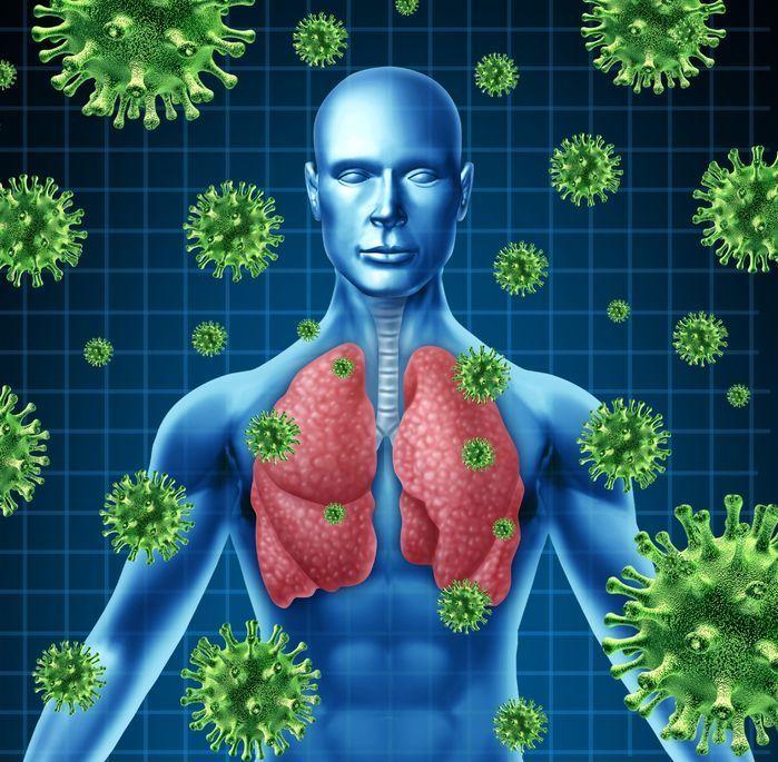 Pulmonía, Neumonía. Gripe, H1N1, Influenza.