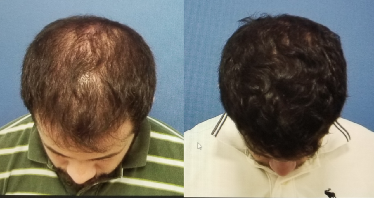 Doc preview alopecia antes y despu%c3%a9s