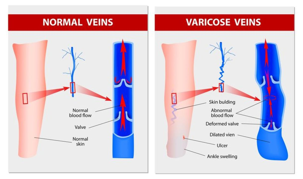 Doc preview 123 varices