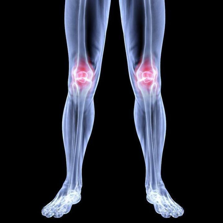 Doc preview rodillas