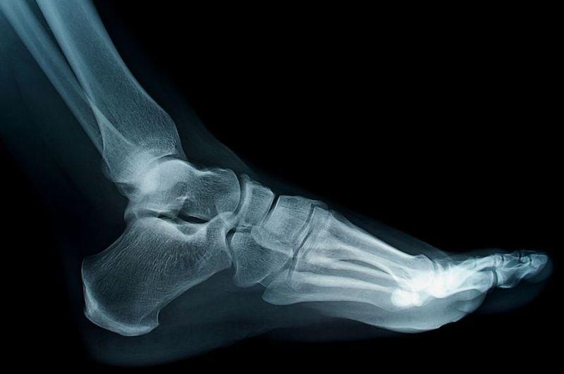 Cirugia minima invasiva de pie