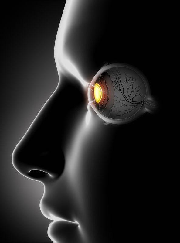 Tratamiento de Glaucoma,