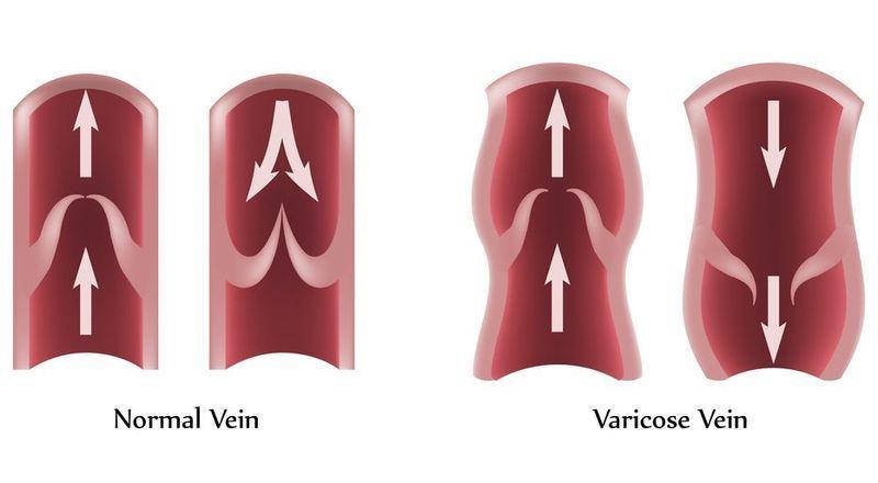 Insuficiencia venosa, insuficiencia arterial