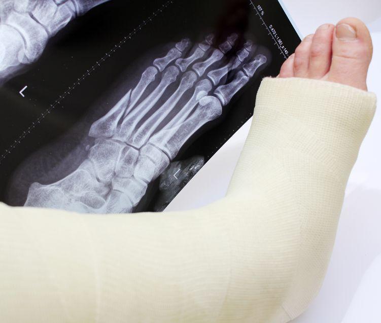 Atencion de fracturas en niños y adultos