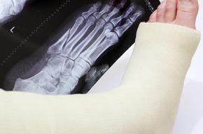 Tip list fractura