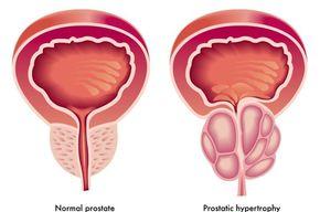 Tip list prostata
