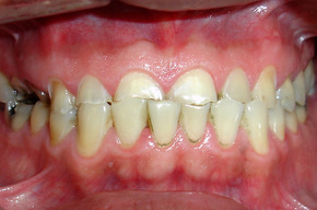 Tip_list_rehabilitaci_n_oral