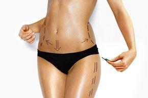 Tip list 123 cuerpo mujer cirugia plastica