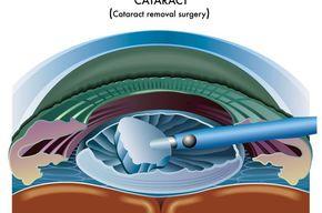 Tip list cirugia de catarata
