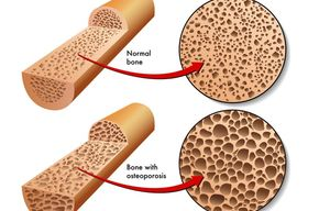 Tip list 123 osteoporosis