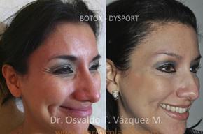 Tip list botox azeneth