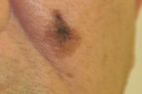 Tip list lentigo maligno melanom a